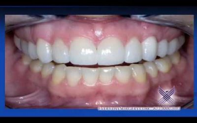 Dr. Wong Speaks About Gum Graft Alternatives