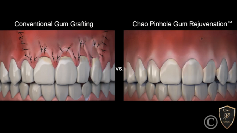 New Technique: Pinhole Gum Rejuvenation