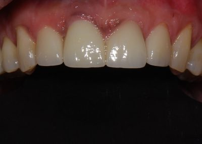 Case 1 After Implant & Crown