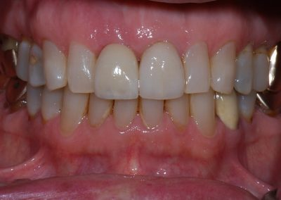 Case 2 After- Implant & Crown
